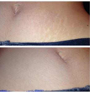 Veil Cream Stretch Marks