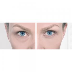 before and after dark circles